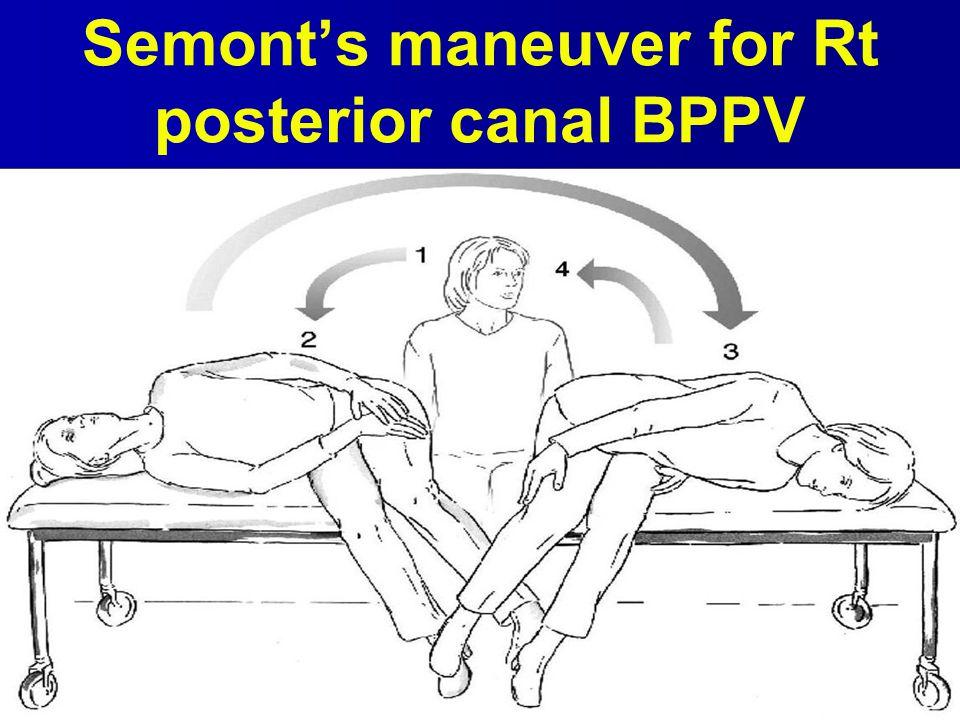 Semont's maneuver for Rt posterior canal BPPV