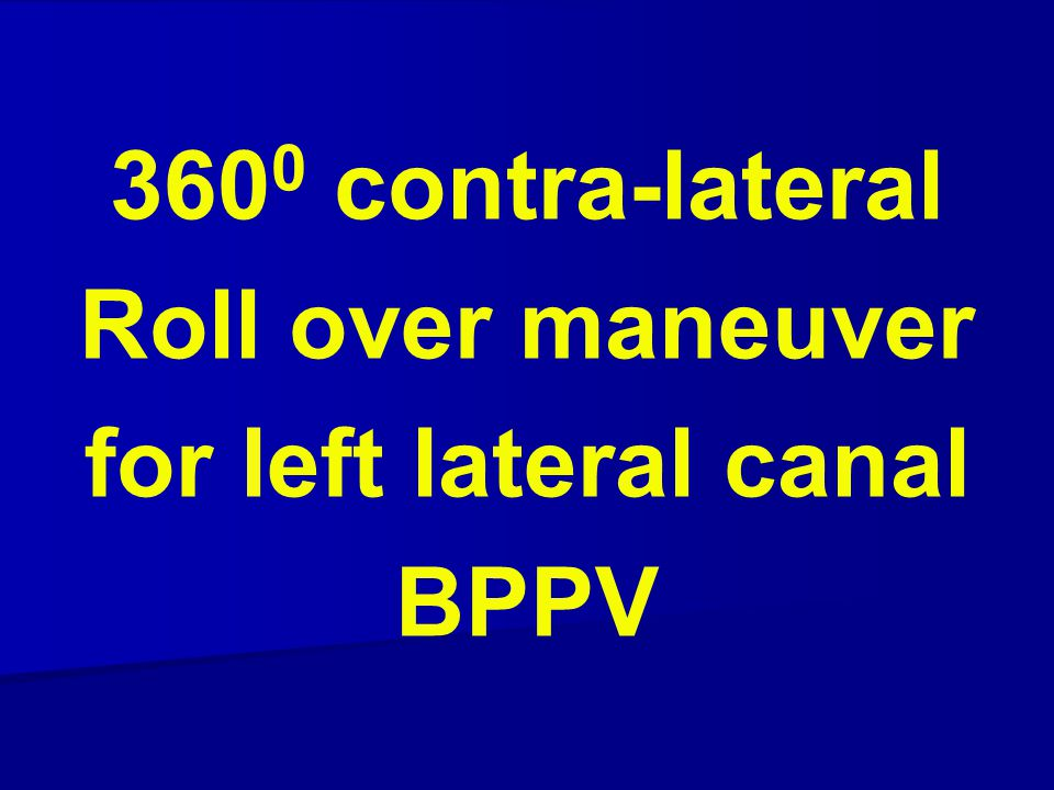360 0 contra-lateral Roll over maneuver for left lateral canal BPPV