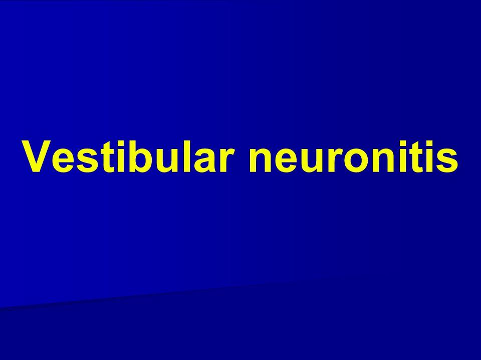 Vestibular neuronitis