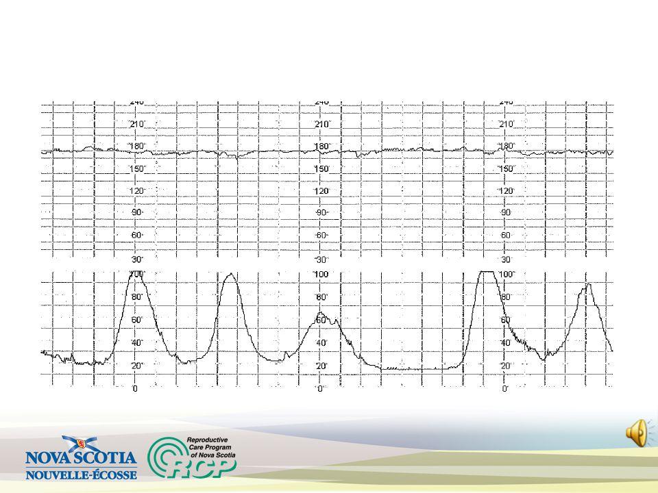 Tachycardia Causes: Prematurity Maternal anxiety/medication Prolonged fetal activity Fever/infection Chronic fetal hypoxemia Baseline > 160 bpm x > 10