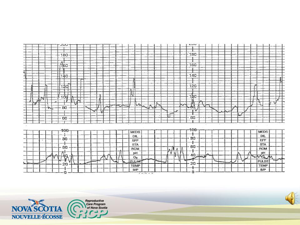 Bradycardia Causes : Postmaturity Fetal heart block Vagal stimulation Fetal hypoxia/acidosis (late sign) Atypical if baseline 100 to 110 bpm; Abnormal