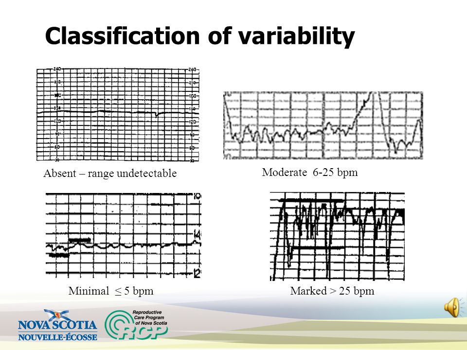 Variability To determine variability: Select a 1-minute section of the tracing Look at the amplitude/range of fluctuations Ensure there is a minimum o