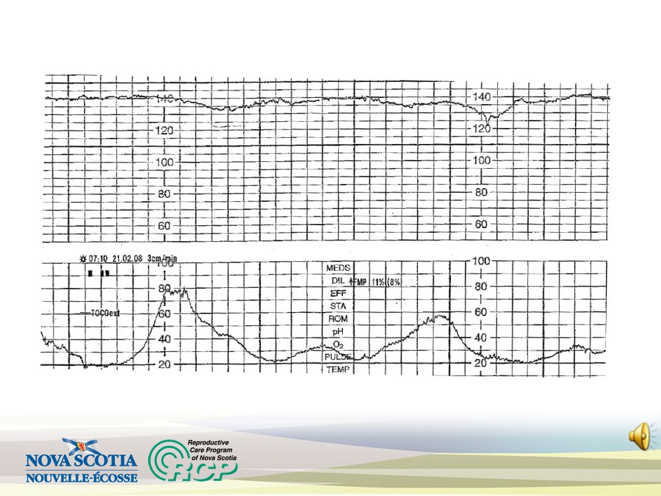 Minimal or absent variability Causes: Fetal sleep Prematurity Medications Hypoxia/acidemia Atypical – if ≤ 5 bpm x 40 to 80 min Abnormal – if ≤ 5 bpm