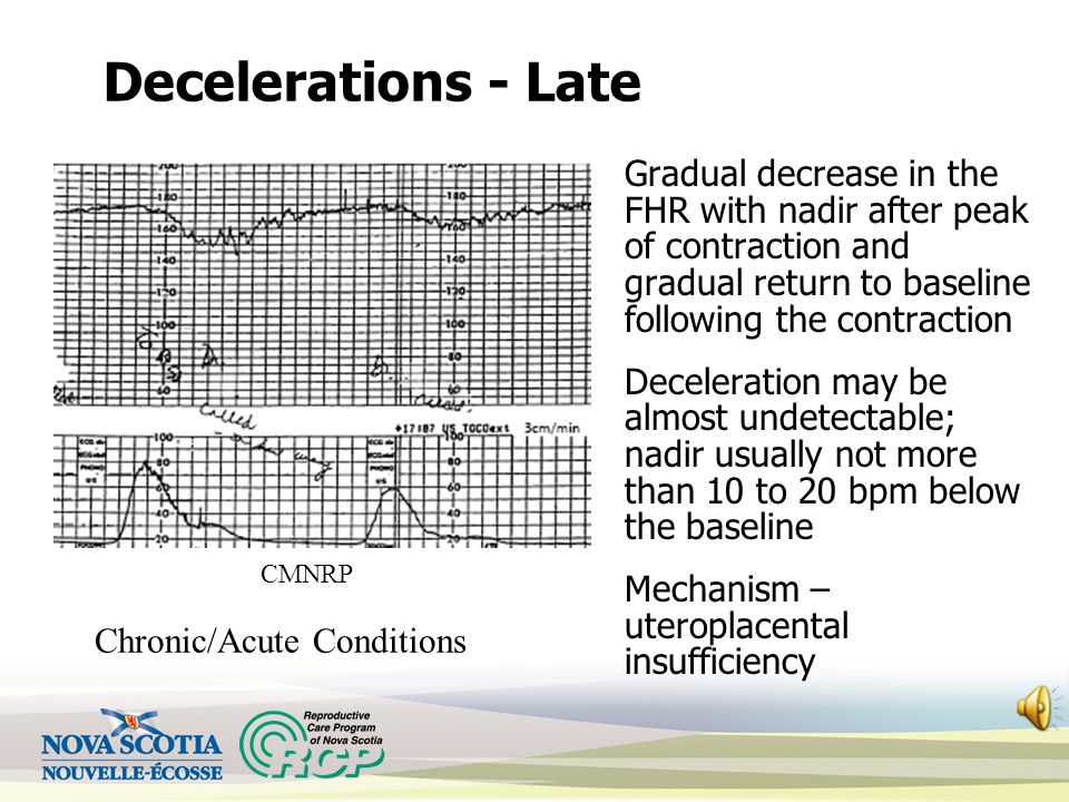 Decelerations - Early 'Mirror image' of contractions Nadir of deceleration occurs with peak of contraction; FHR returns to baseline as the contraction