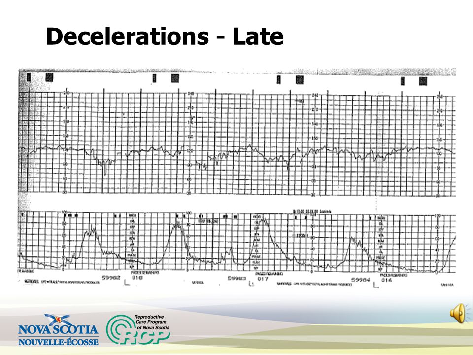 Decelerations - Late Gradual decrease in the FHR with nadir after peak of contraction and gradual return to baseline following the contraction Deceler
