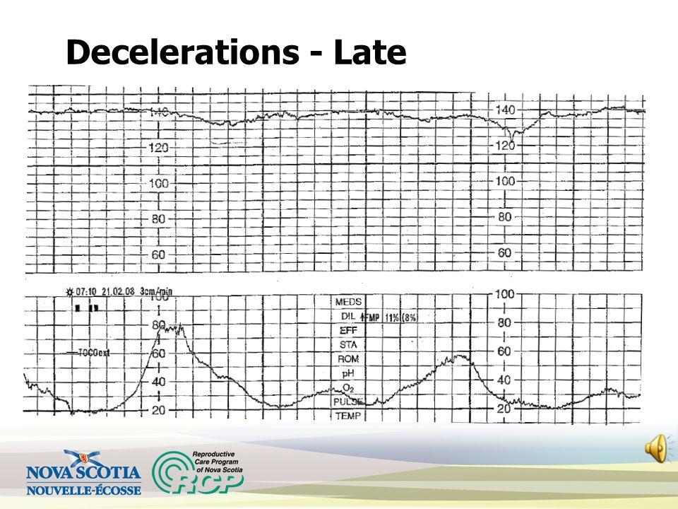 Decelerations - Late