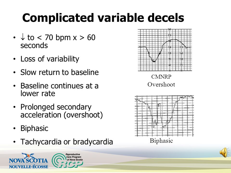 Decelerations - Variable Abrupt decrease in the FHR, at least 15 bpm below the baseline, lasting ≥ 15 seconds and < 2 minutes Uncomplicated variables
