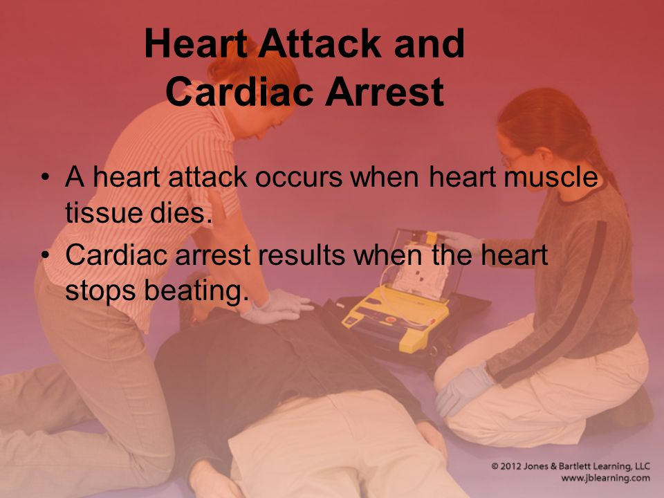 Heart Attack and Cardiac Arrest A heart attack occurs when heart muscle tissue dies.