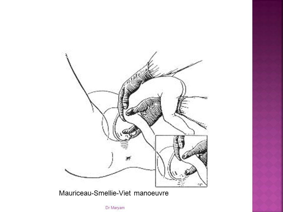 Mauriceau-Smellie-Viet manoeuvre Dr Maryam
