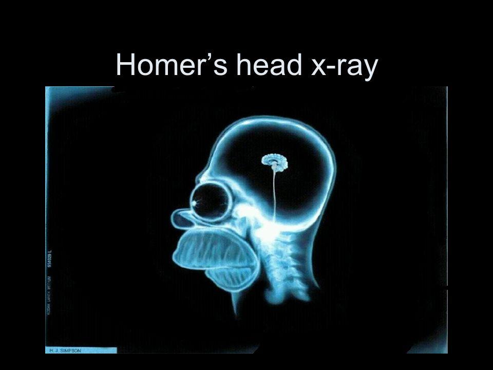 Homer's head x-ray
