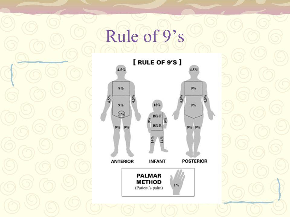 Rule of 9's