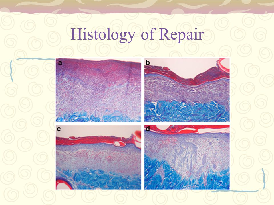 Histology of Repair