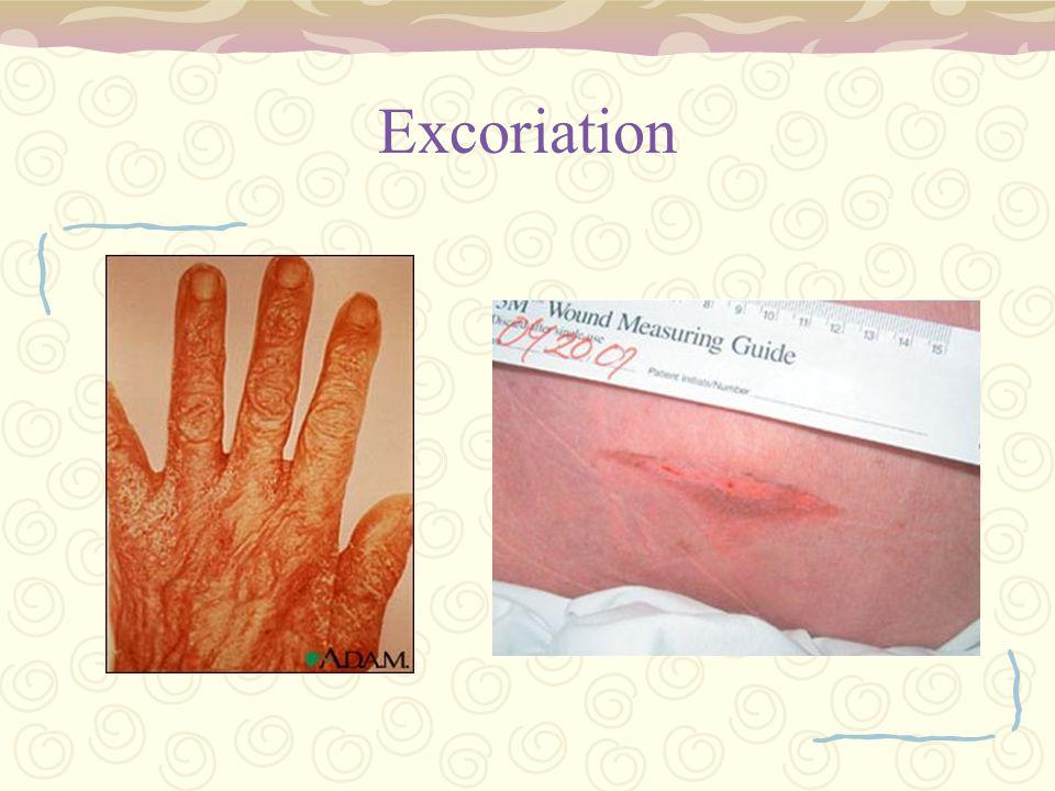 Excoriation