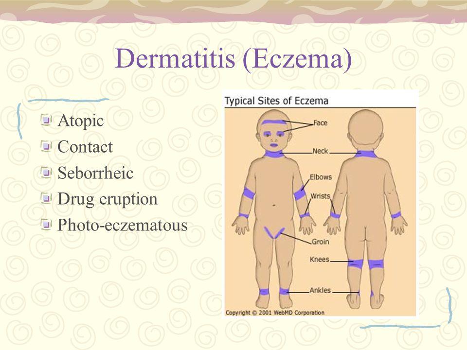 Dermatitis (Eczema) Atopic Contact Seborrheic Drug eruption Photo-eczematous