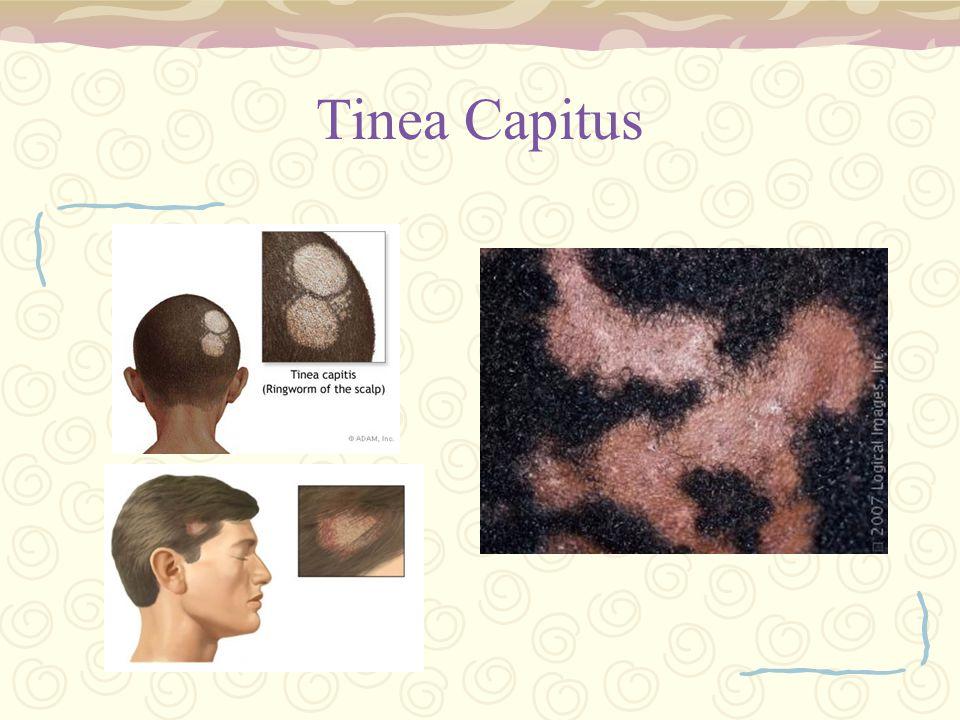 Tinea Capitus