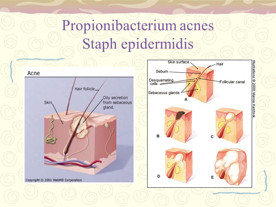 Propionibacterium acnes Staph epidermidis