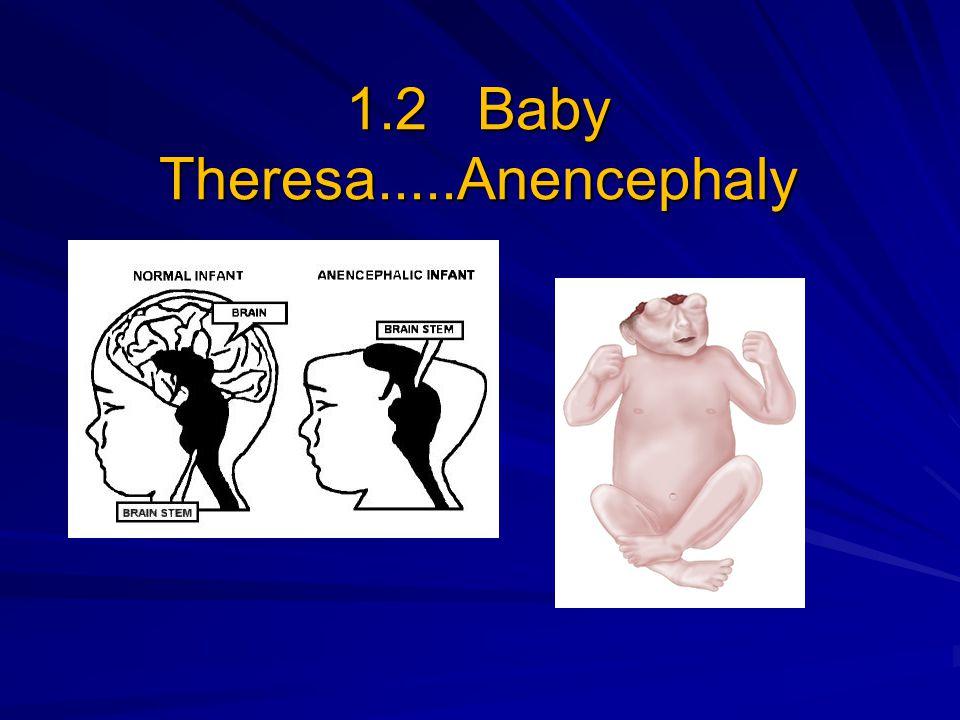 1.2 Baby Theresa.....Anencephaly