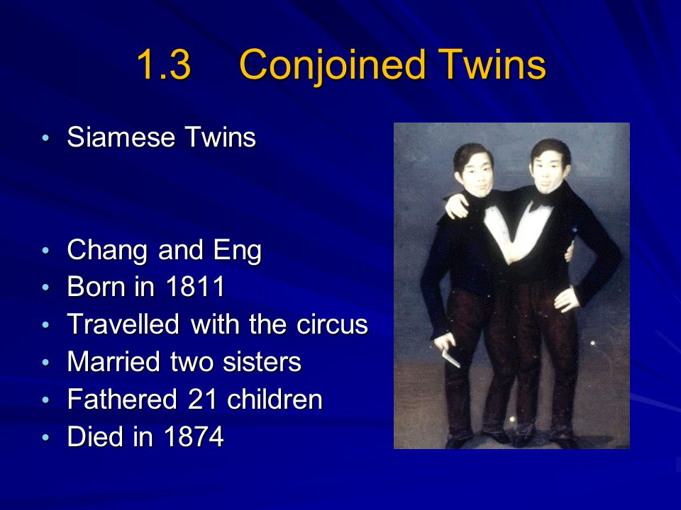 1.3 Conjoined Twins Siamese Twins Siamese Twins Chang and Eng Chang and Eng Born in 1811 Born in 1811 Travelled with the circus Travelled with the cir