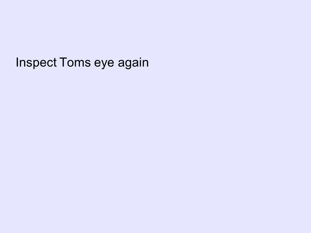 Inspect Toms eye again
