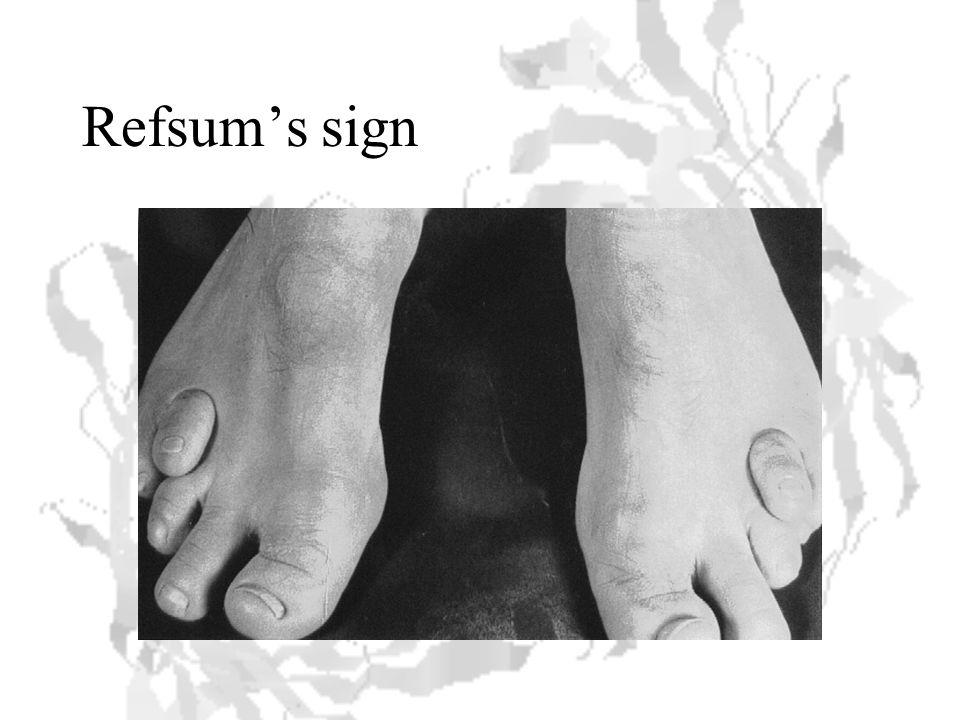 Refsum's sign