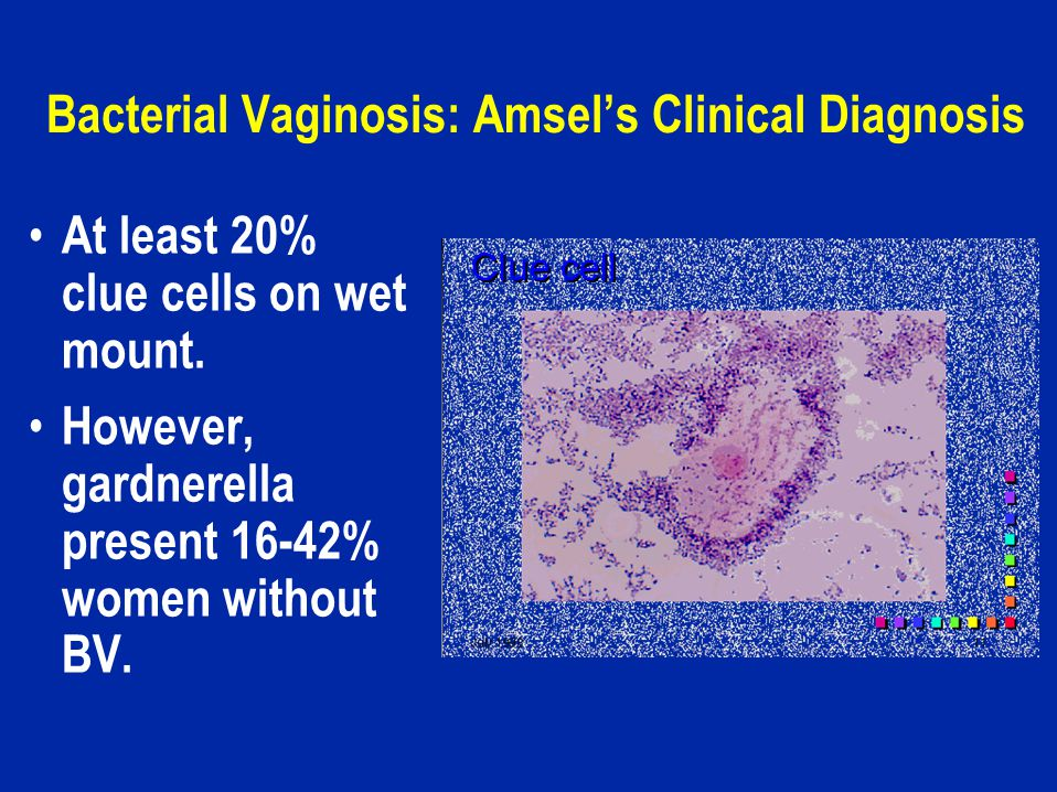 Bacterial Vaginosis: Amsel's Clinical Diagnosis At least 20% clue cells on wet mount.