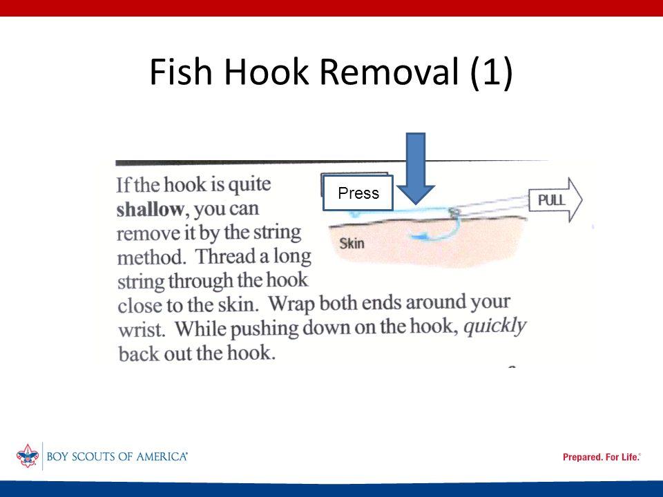 Fish Hook Removal (1) Press