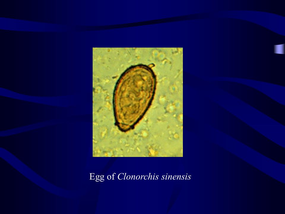 Egg –Ovoid and non-opeculate –74~106  m × 55~80  m –Contains one miracidium –Bear a minute lateral knob.