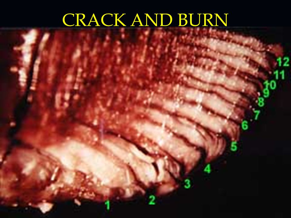 CRACK AND BURN