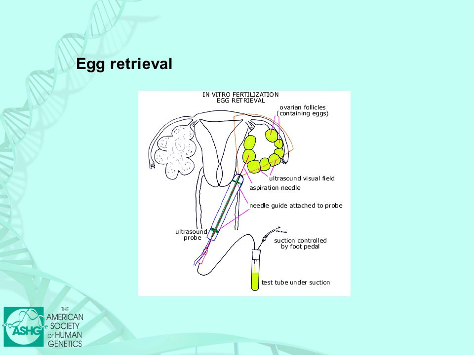 Egg retrieval