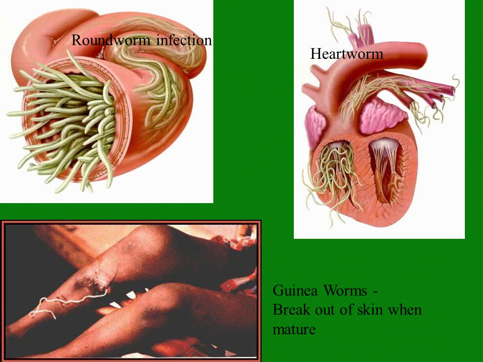 Roundworm infection Heartworm Guinea Worms - Break out of skin when mature