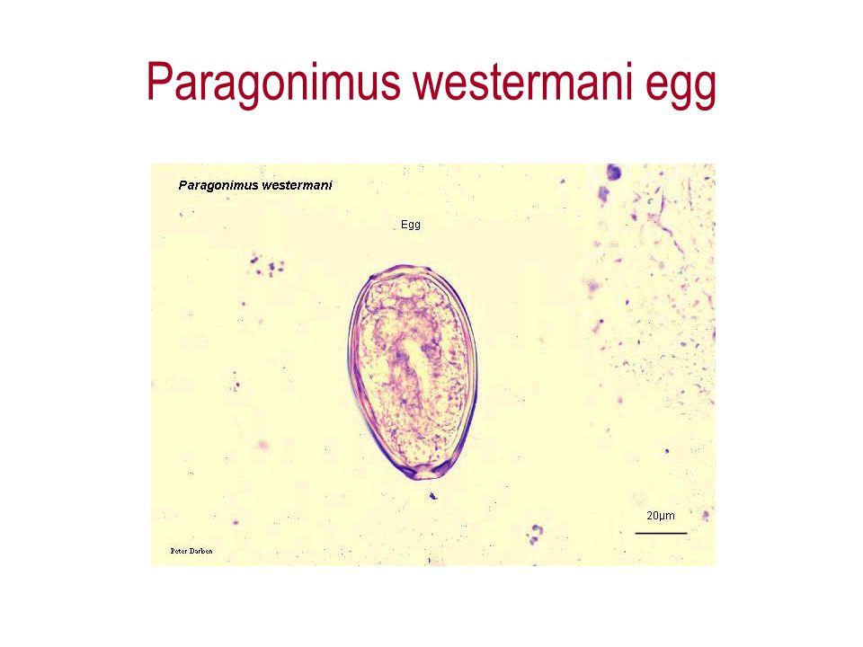 Paragonimus westermani egg