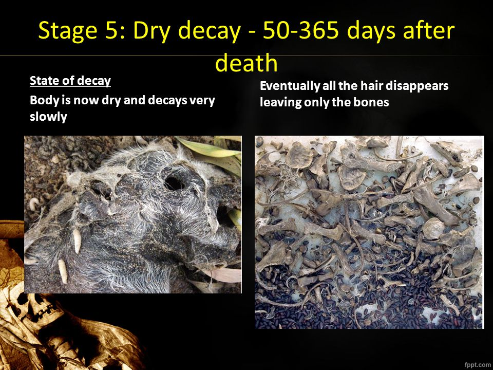 Stage 5: Dry decay - 50-365 days after death State of decay Body is now dry and decays very slowly Eventually all the hair disappears leaving only the
