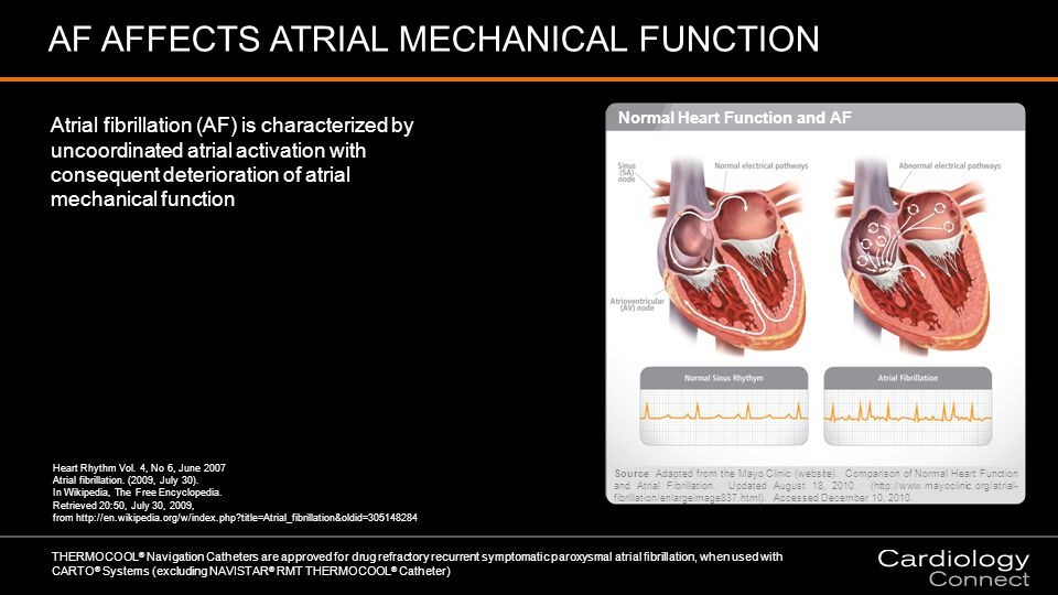 AF AFFECTS ATRIAL MECHANICAL FUNCTION Atrial fibrillation (AF) is characterized by uncoordinated atrial activation with consequent deterioration of atrial mechanical function THERMOCOOL ® Navigation Catheters are approved for drug refractory recurrent symptomatic paroxysmal atrial fibrillation, when used with CARTO ® Systems (excluding NAVISTAR ® RMT THERMOCOOL ® Catheter) Heart Rhythm Vol.