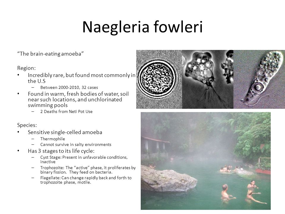 """Naegleria fowleri """"The brain-eating amoeba"""" Region: Incredibly rare, but found most commonly in the U.S – Between 2000-2010, 32 cases Found in warm, f"""
