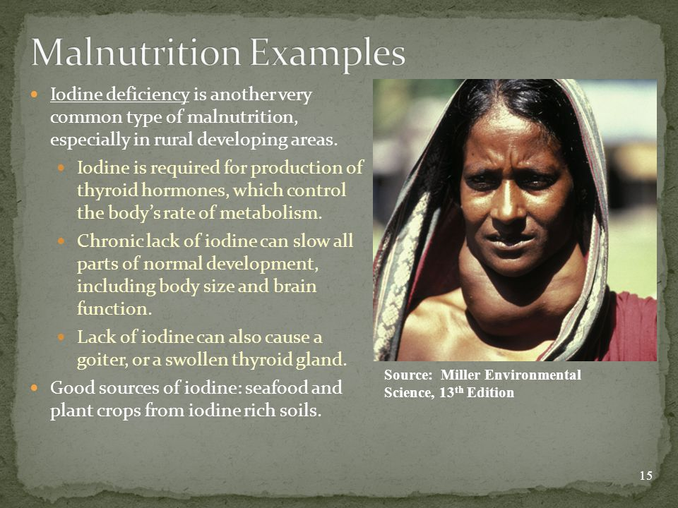 Iodine deficiency is another very common type of malnutrition, especially in rural developing areas.