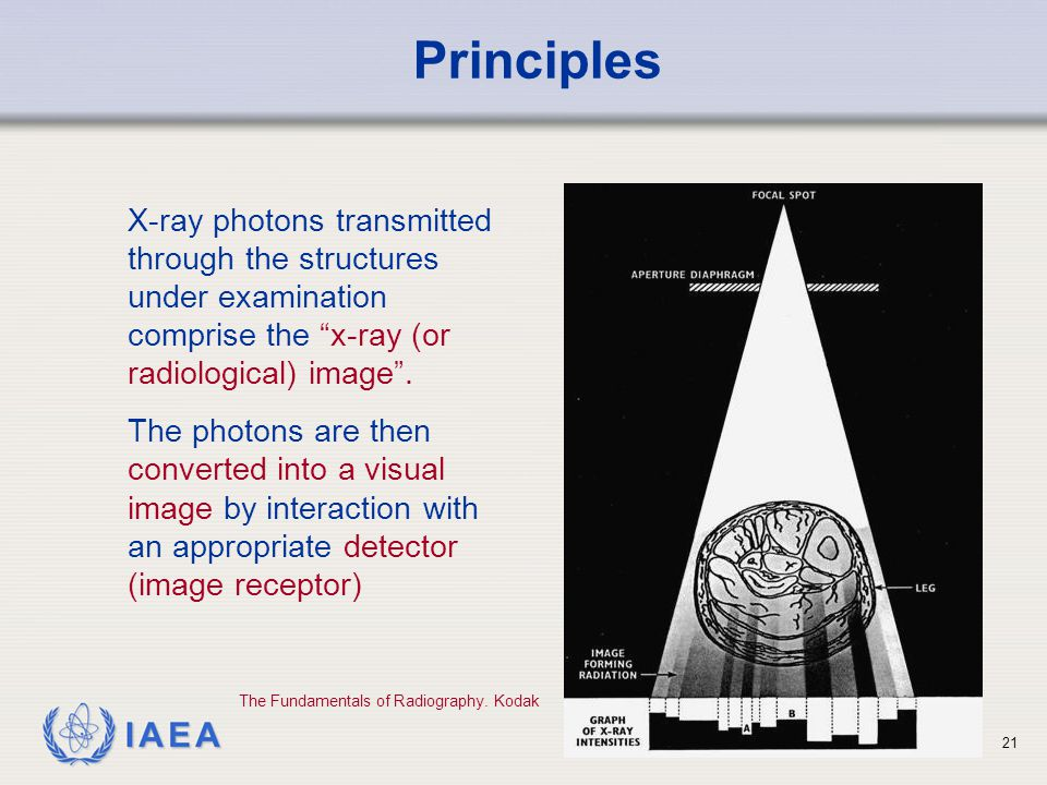 "IAEA 21 X-ray photons transmitted through the structures under examination comprise the ""x-ray (or radiological) image"". The photons are then converte"