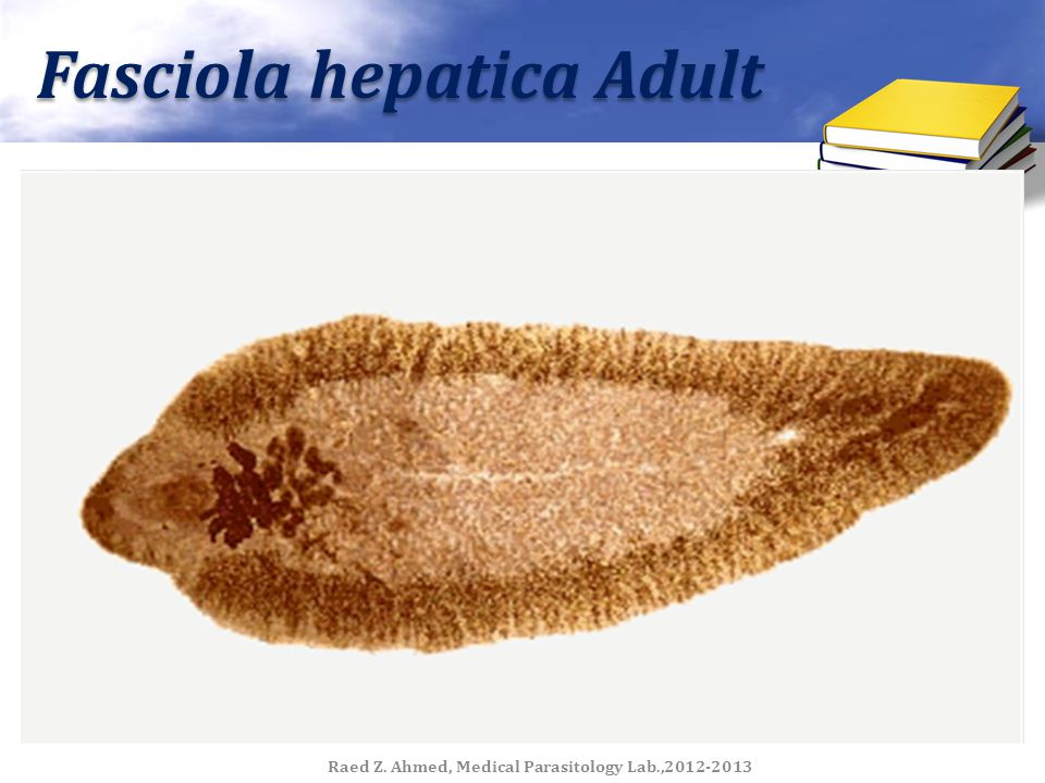 Fasciola hepatica Adult Raed Z. Ahmed, Medical Parasitology Lab.,2012-2013