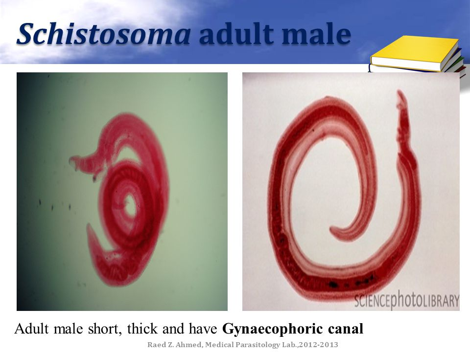Schistosoma adult male Adult male short, thick and have Gynaecophoric canal Raed Z. Ahmed, Medical Parasitology Lab.,2012-2013