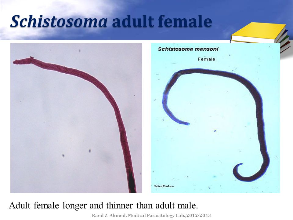 Schistosoma adult female Adult female longer and thinner than adult male. Raed Z. Ahmed, Medical Parasitology Lab.,2012-2013