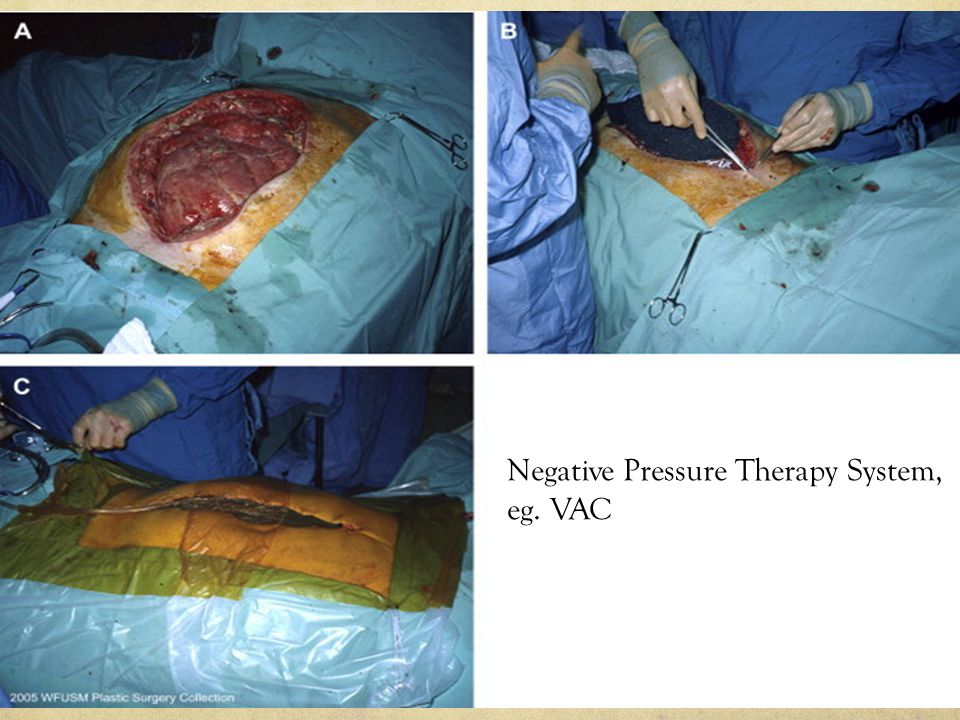 Negative Pressure Therapy System, eg. VAC