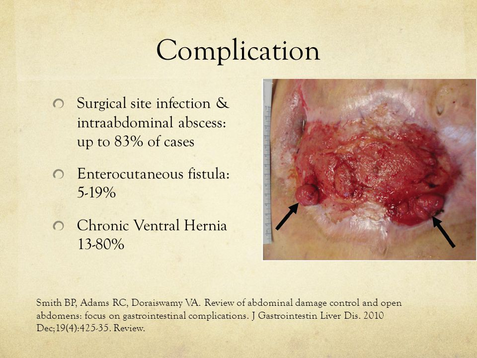 Complication Surgical site infection & intraabdominal abscess: up to 83% of cases Enterocutaneous fistula: 5-19% Chronic Ventral Hernia 13-80% Smith B