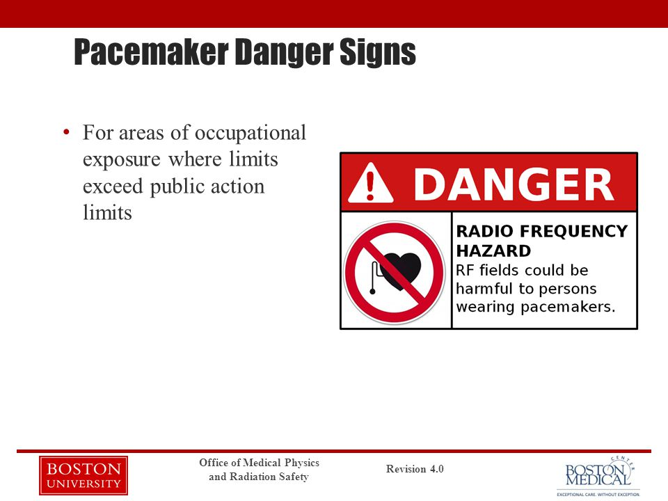 Pacemaker Danger Signs For areas of occupational exposure where limits exceed public action limits Revision 4.0 Office of Medical Physics and Radiatio