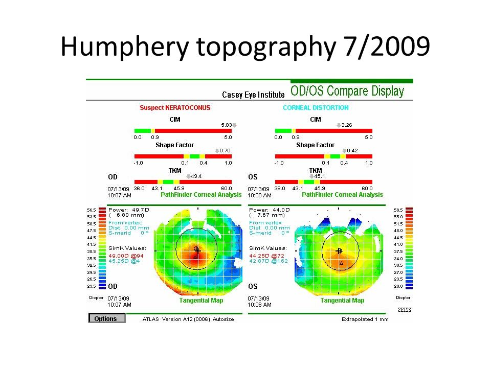 Humphery topography 7/2009