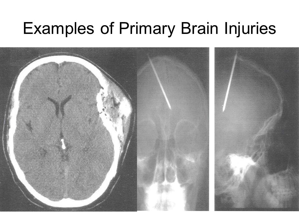 Examples of Primary Brain Injuries