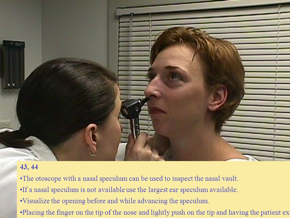43, 44 The otoscope with a nasal speculum can be used to inspect the nasal vault. If a nasal speculum is not available use the largest ear speculum av