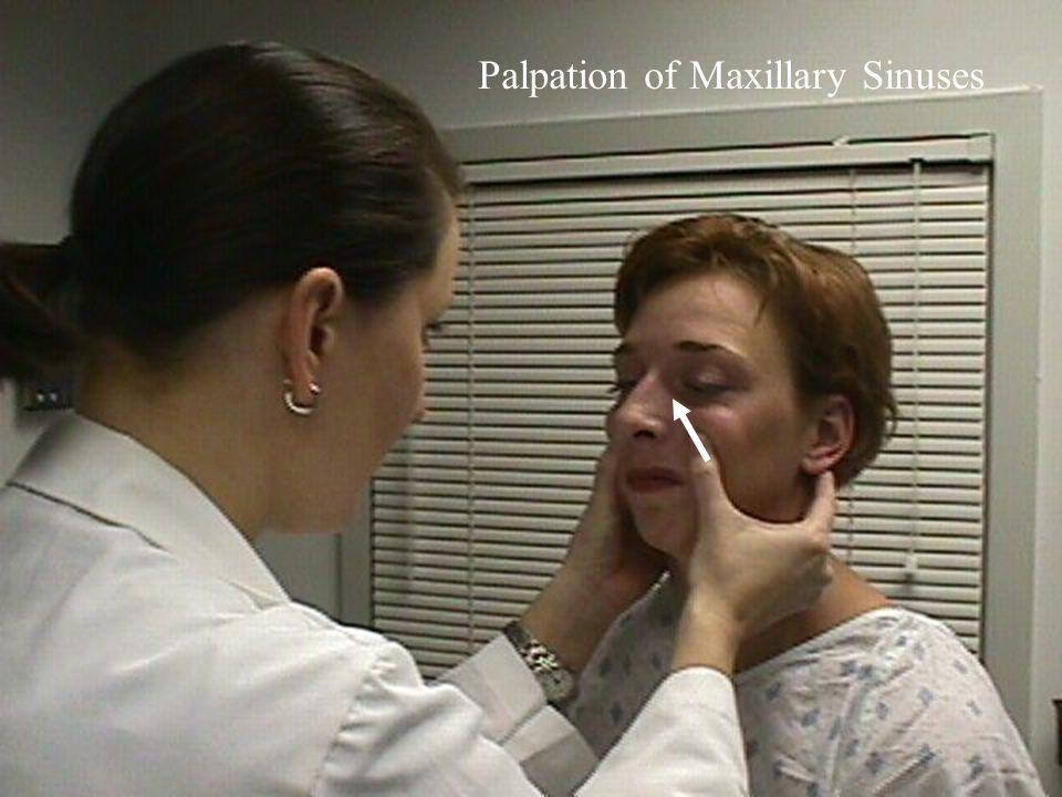 Palpation of Maxillary Sinuses