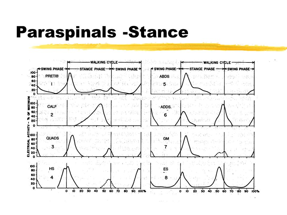Paraspinals -Stance