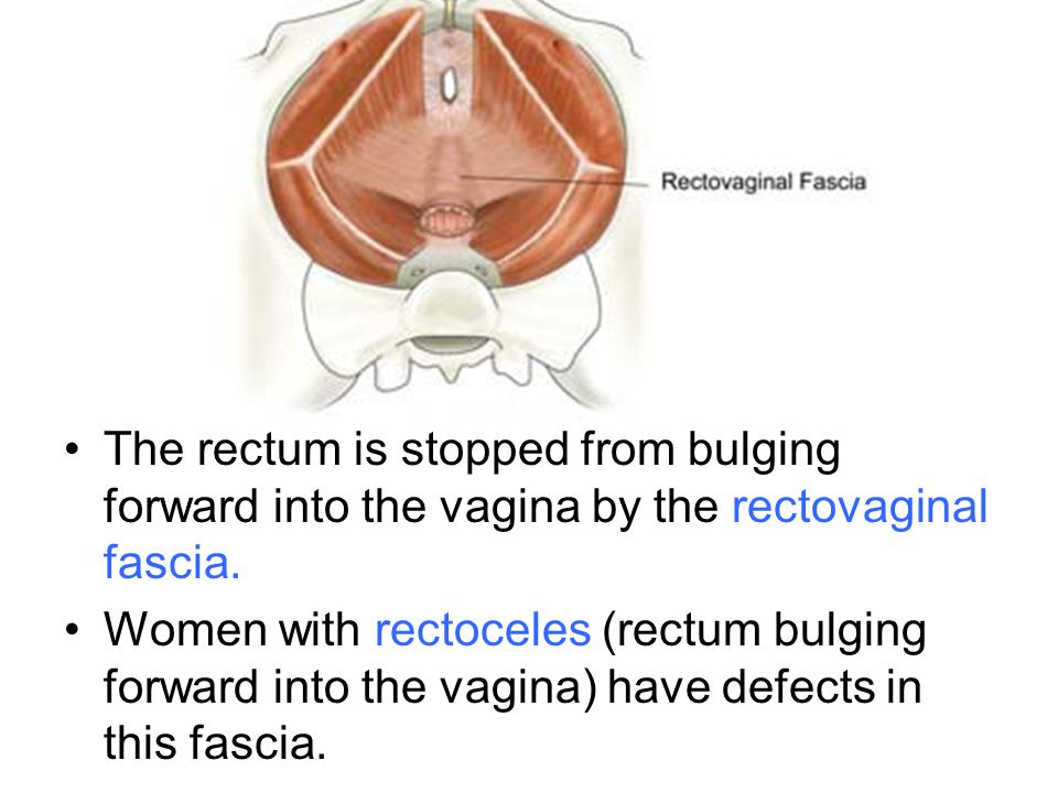 The rectum is stopped from bulging forward into the vagina by the rectovaginal fascia. Women with rectoceles (rectum bulging forward into the vagina)