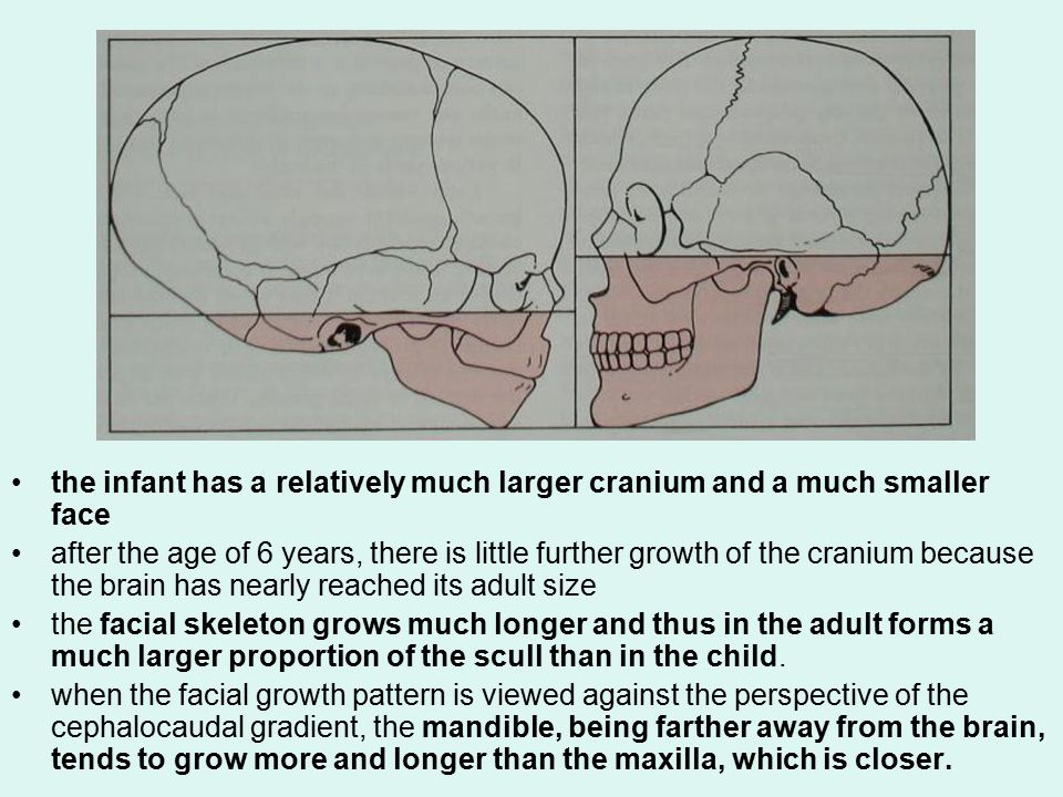 Maxilla (Nasomaxillary complex) The surfaces are remodeled, and bone is removed from most of the anterior surface.