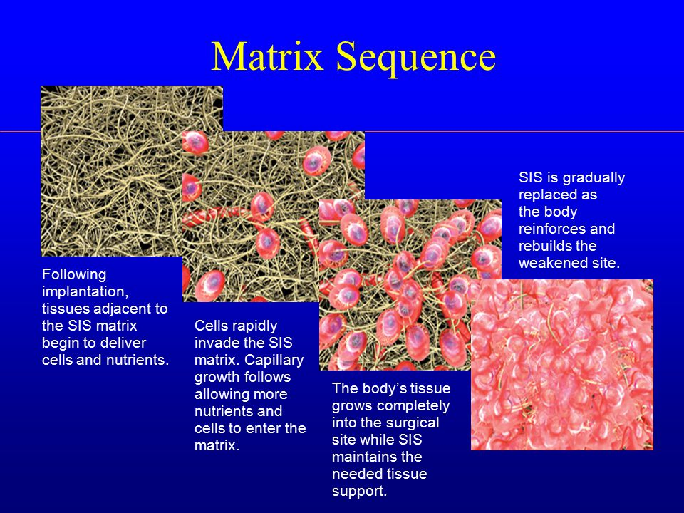 Matrix Sequence Following implantation, tissues adjacent to the SIS matrix begin to deliver cells and nutrients.